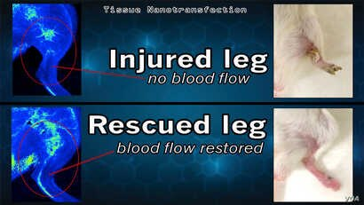 This graphic shows the results of a breakthrough discovery called tissue nano-transfection. In laboratory tests at The Ohio State University Wexner Medical Center, researchers were able to heal the badly injured legs of mice in just three weeks, with...
