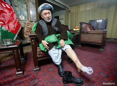 FILE - Ahmad Ishchi, who is reported to have been beaten and detained on order of Afghanistan's Vice President, Abdul Rashid Dostum, displays an injury on his leg during an interview at his home in Kabul, Afghanistan, Dec. 13, 2016.