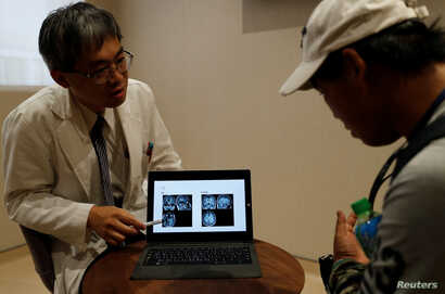 Dr. Lin Ming-teng, head of the psychiatry department at Taipei Veterans General Hospital, shows X-ray images explaining the difference between a normal brain (L) and Chen Hong-zhi's brain during an appointment at the hospital, in Hsinchu, Taiwan, Jul...