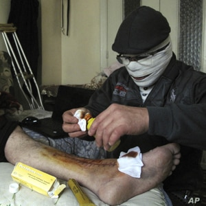 An injured man gets treated in a Damascus neighborhood, Syria, Tuesday, April 3, 2012.