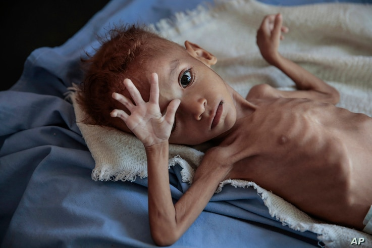 FILE - A severely malnourished boy rests on a hospital bed at the Aslam Health Center, Hajjah, Yemen, Red Sea port city of Hodeida