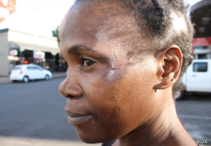 This woman carries the scars of a near-fatal car smash, like many thousands of South Africans.