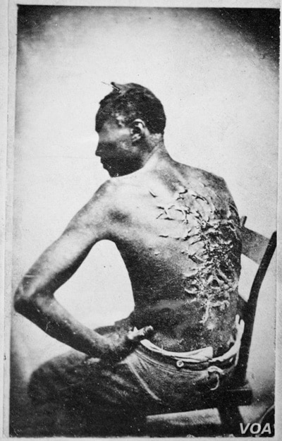 "The original caption on this 1863 photograph of a slave read: ""Overseer Aarayou Carrier whipped me. I was two months in bed sore from the whipping. My master come after I was whipped; he discharged the overseer."" (image courtesy of the National Archi..."