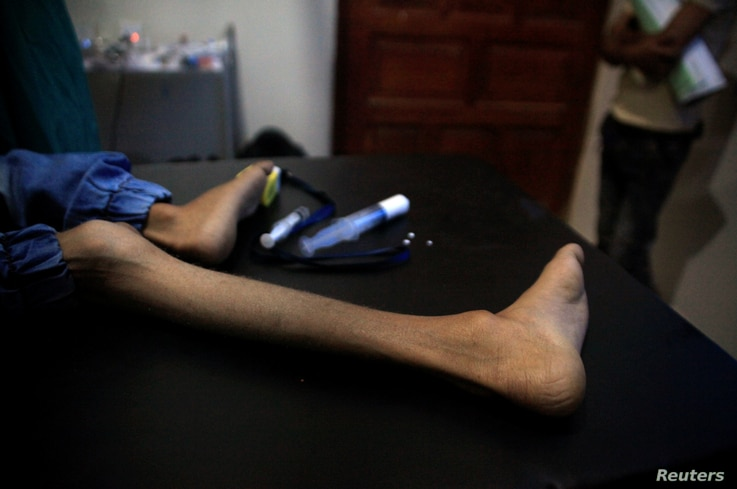 FILE - The leg of malnourished Ghazi Ahmad, 10, is pictured as he lies on a stretcher at a hospital in Taiz, Yemen, Nov. 3, 2018.