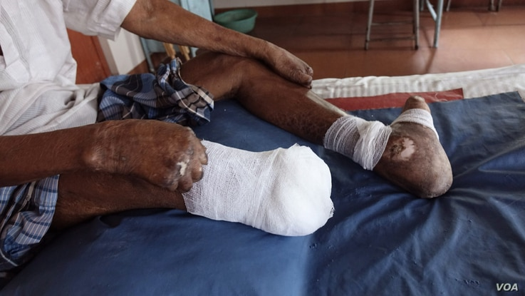 An amputated leg, claw toes and claw hands of a leprosy patient are seen at the Leprosy Mission Trust India hospital, Kolkata, Sept. 20 2016. Doctors say, if the infection is not detected early, the disease often cripples people disfiguring their lim...
