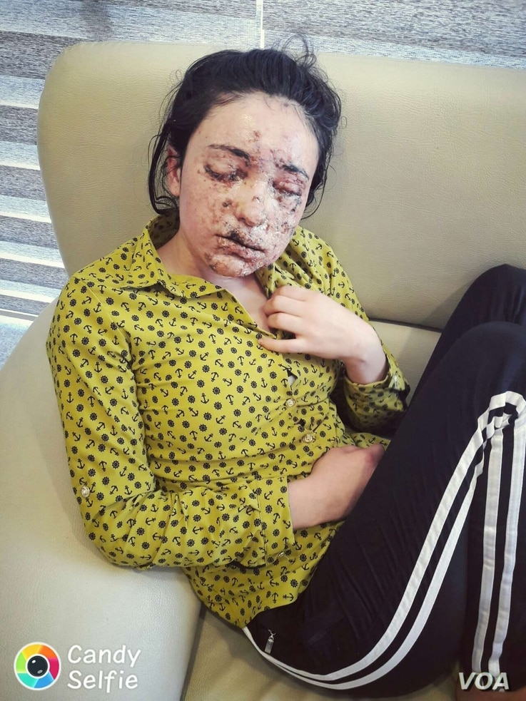 Lamiya Hachi Bashar laying on a couch while waiting for treatment, May 2, 2016.  (Photo courtesy of Bashar's uncle Idris Kojo)