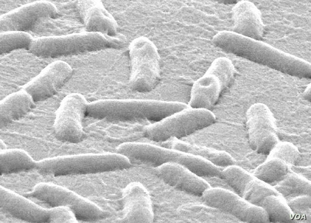 The research targeted Pseudomonas aeruginosa, which causes infection in the lungs, urinary tract, wounds and elsewhere.  (Singh Lab, University of Washington)
