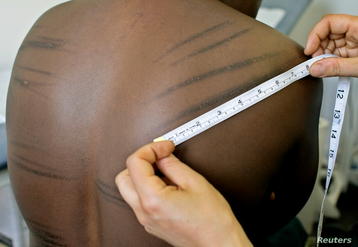FILE - A torture sufferer from Uganda is examined by a doctor at the headquarters of Freedom From Torture, formerly known as the Medical Foundation for the Care of Victims of Torture, in London, June 7, 2007.