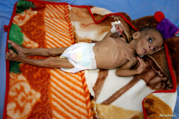 One-year-old Fatima Abdullah Hassan, who suffers from severe malnutrition, lies in bed at a malnutrition treatment center in the Red Sea port city of Hodeida, Yemen.