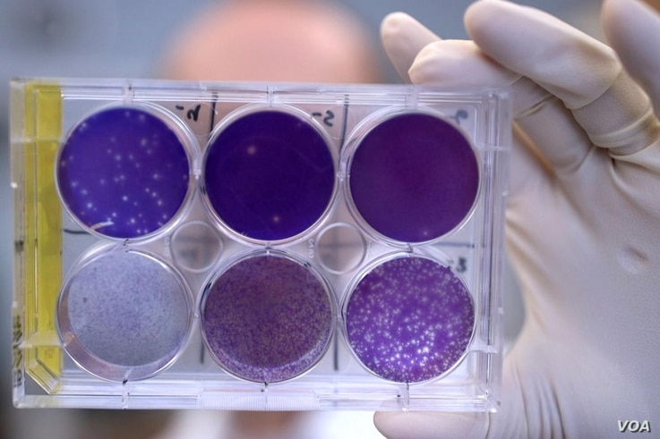 A researcher holds a tray of Zika virus growing in animal cells at Washington University School of Medicine in St. Louis, Missouri. Researchers have identified a human antibody that prevents, in pregnant mice, the fetus from becoming infected and the