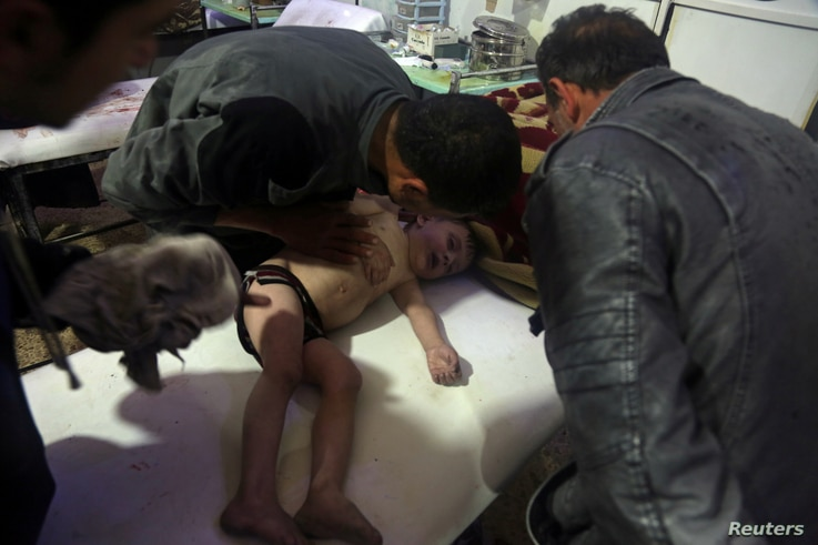 A child is treated in a hospital in Douma, eastern Ghouta, near Damascus, Syria, after a suspected chemical attack April, 7, 2018. (White Helmets/Handout via Reuters)