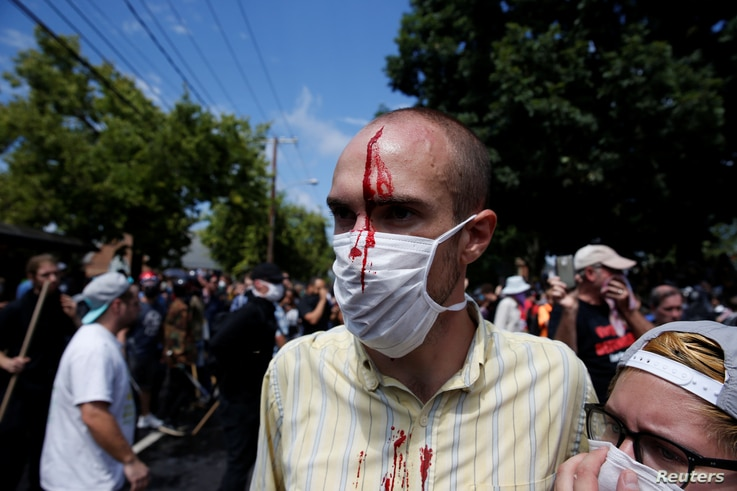 A man is seen with an injury during a clash between members of white nationalist protesters and counterprotesters in Charlottesville, Va., Aug. 12, 2017.
