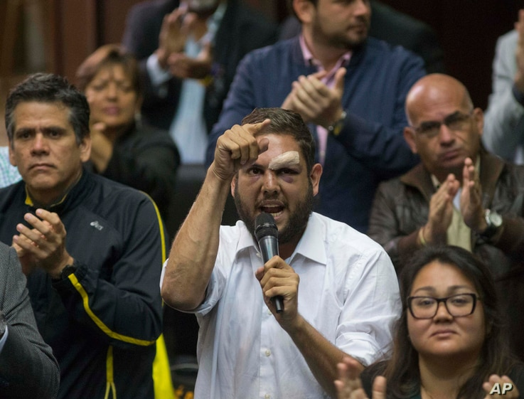 FILE - Opposition lawmaker Juan Requesens, center, speaks at the National Assembly during a session in Caracas, Venezuela. President Nicolas Maduro on Aug. 7, 2018, accused Requesens and another opposition legislator of having roles in the drone expl...