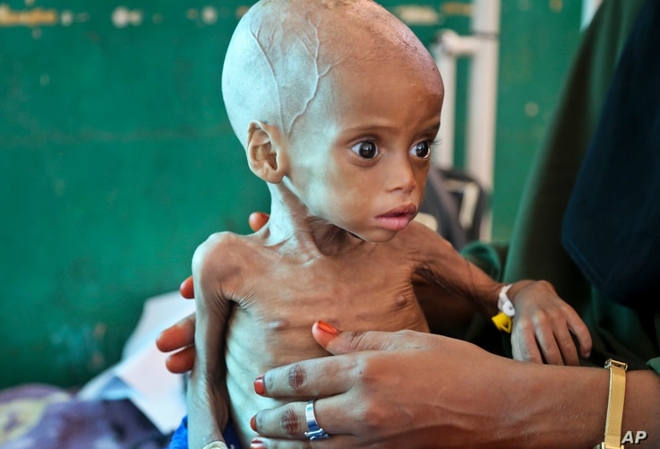 Acutely malnourished child, Sacdiyo Mohamed, 9 months old, is treated at the Banadir Hospital after her mother fled the drought in southern Somalia and traveled by car to the capital Mogadishu, March 11, 2017. Projects to help drought and flood relat