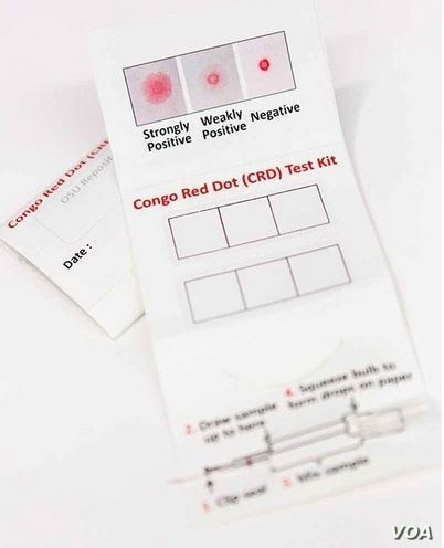 The Congo Red Dot test is a simple clinical tool that allows for accurate, rapid diagnosis of preeclampsia, a new study shows. (Photo courtesy of Ohio State University Wexner Medical Center)