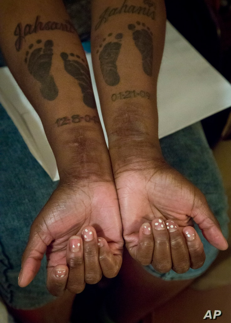 FILE - In this May 22, 2015 photo, Candie Hailey shows her inner forearms with footprint tattoos for her two sons along with their names, and scars on both wrists she says came from suicide attempts while confined at Rikers Island in New York.