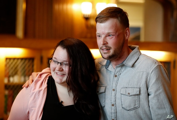 Lilly Ross, left, talks with Andy Sandness after meeting at the Mayo Clinic, Oct. 27, 2017, in Rochester, Minn.  Sandness lived nearly a decade without a face.