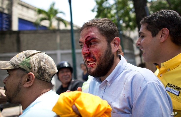 Opposition lawmaker Juan Requesens, center, is escorted out by his colleagues after he was hit in the forehead by alleged government supporters as he protested with a group of fellow lawmakers outside of the Ombudsman's offices in Caracas, Venezuela,...