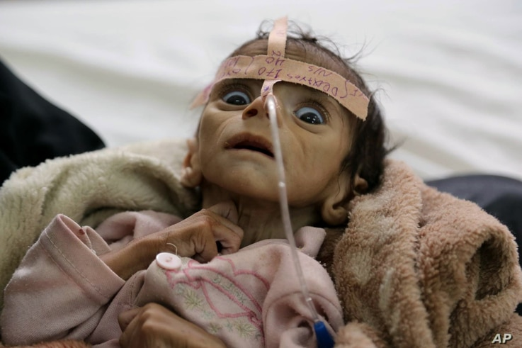 Infant Udai Faisal, who died from acute malnutrition on March 24, is one of thousands of Yemeni children who are suffering from hunger as one of the most horrific consequence of the Yemeni conflict and the naval blockade and airstrikes by the Saudi-l...