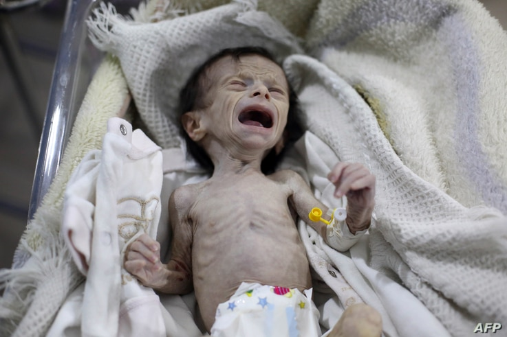 FILE - A Syrian infant suffering from severe malnutrition is seen at a clinic in Hamouria, Eastern Ghouta, a suburb of Damascus, Syria, Oct. 21, 2017.
