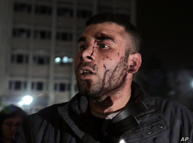 Dogan Asik, 28, who was blown away from inside a bus by a powerful explosion speaks at the explosion site in the busy center of Turkish capital, Ankara, Turkey, Sunday, March 13, 2016.