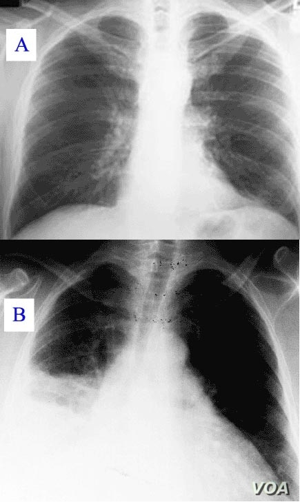 X-ray showing clear (A) and pneumonia infected lungs (B)