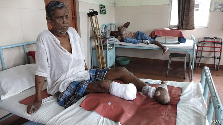 """""""There was no awareness about the disease when I got the infection. Now I know, if I took the treatment early I would have not faced this amputation or any disfigurement,"""" Bag said. (M. Hussain/VOA)"""