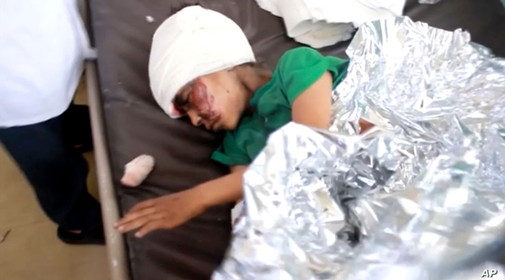 This image made from video taken on Thursday, Aug. 9, 2018, shows a child injured in an airstrike resting at a hospital in Saada, Yemen.
