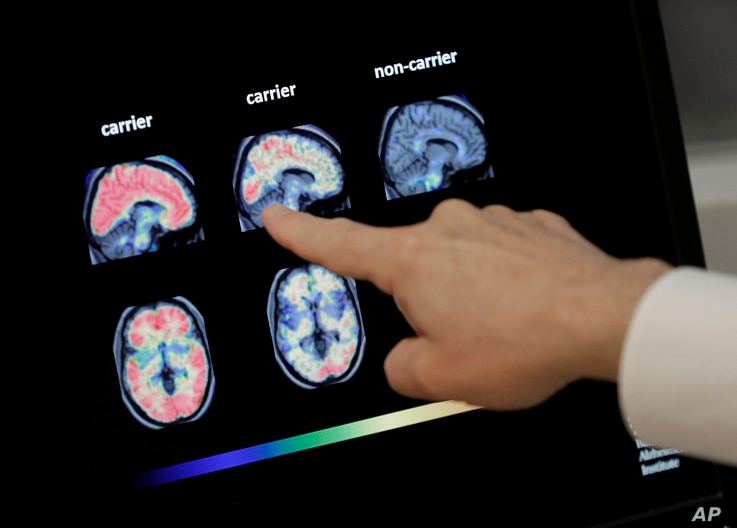 FILE - Dr. William Burke goes over a PET brain scan, Aug. 14, 2018 at Banner Alzheimers Institute in Phoenix, Arizona.