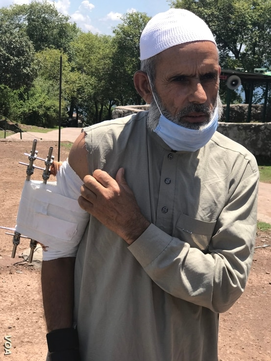 Abdul Aziz of Chirikot village in Pakistan-administered Kashmir, is among civilians wounded in recent from from across Indian side of Kashmir, July 22, 2020. (VOA/ Ayaz Gul)