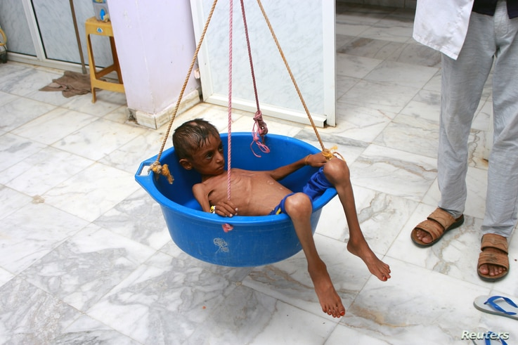 A doctor weighs malnourished boy Hassan Merzam Muhammad at a hospital in Aslam district of Hajjah province, Yemen, July 18, 2020.