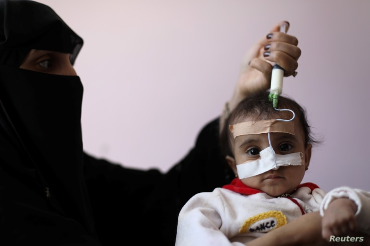 A woman uses a syringe to feed her malnourished daughter at a malnutrition treatment ward of al-Sabeen hospital in Sanaa, Yemen…