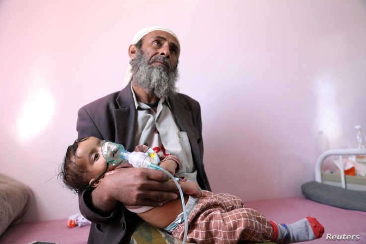 A man holds his malnourished daughter at a malnutrition treatment ward of al-Sabeen hospital in Sanaa, Yemen, Oct. 27, 2020.