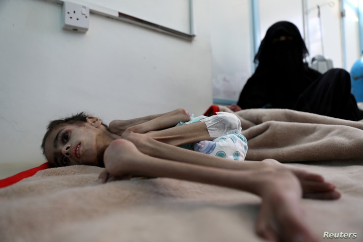 FILE - Faid Samim, 7, a malnourished boy who also has cerebral palsy, lies on a bed at the malnutrition treatment ward of al-Sabeen hospital in Sana'a, Yemen, Dec. 28, 2020.