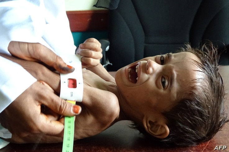 Ahmed Abdo Salem, a two-year-old Yemeni child displaced by conflict suffering from malnutrition (weighing only five kilograms)...
