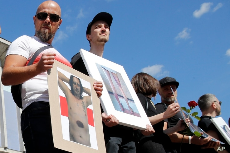 People hold pictures of a protesters beaten by police during a rally in Minsk, Belarus, Saturday, Aug. 15, 2020. Thousands of…