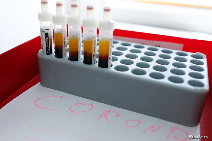 Blood samples are prepared for testing for the corona virus at a laboratory in Berlin, Germany, March 26, 2020, as the spread…