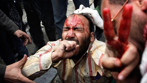 A wounded anti-government protestor is tended during clashes in Cairo, Egypt, Thursday, Feb. 3, 2011. Another bout of heavy gunfire and clashes erupted Thursday around dusk in the Cairo square at the center of Egypt's anti-government chaos, while new loot