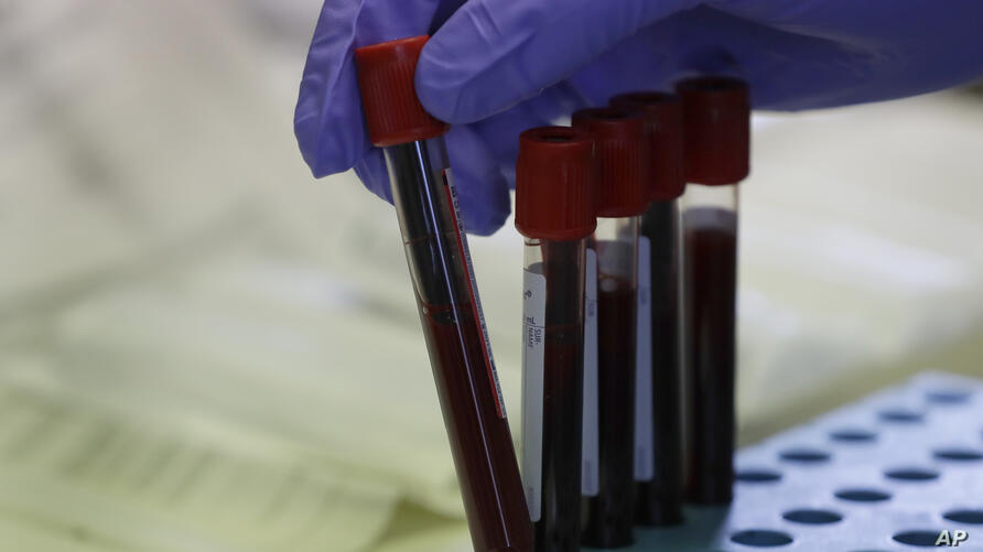 Blood samples from volunteers are handled in the laboratory at Imperial College in London, Thursday, July 30, 2020. Imperial…