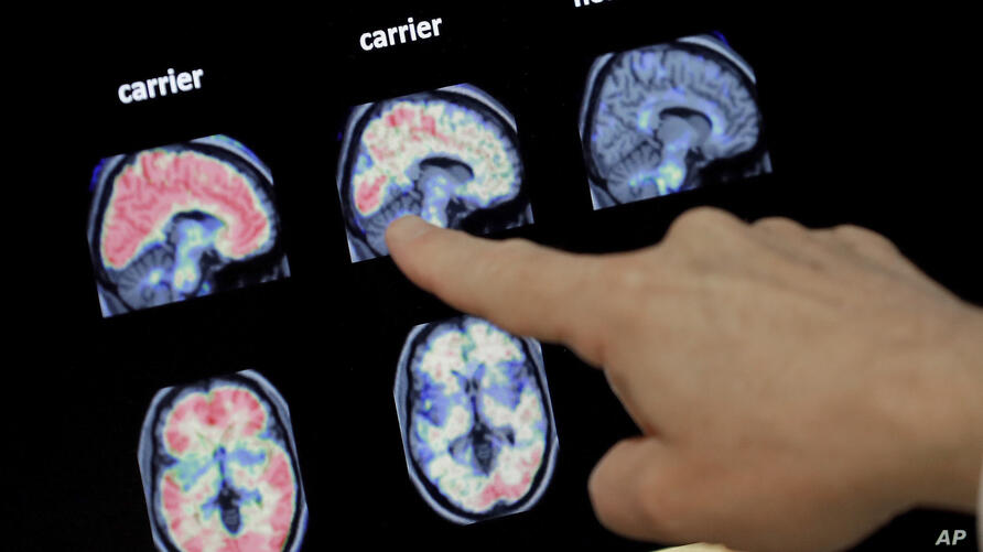 FILE - In this Aug. 14, 2018 file photo, a doctor looks at a PET brain scan at the Banner Alzheimers Institute in Phoenix. Two…