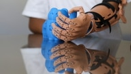 Juan Moyolema, an 8-year-old boy who was born missing the lower part of his left arm, picks a toy up with a 3D printed tailor…